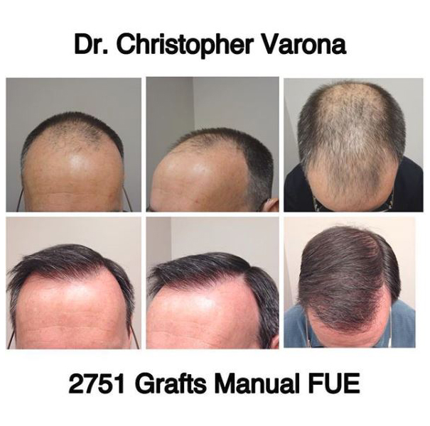 patient progress after manual FUE transplant