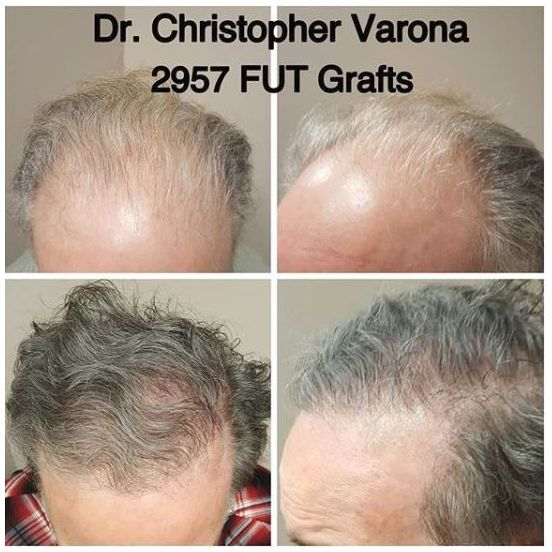 man's thinning hair restored after 8 months