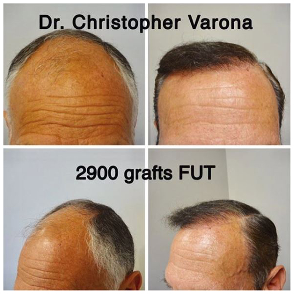 FUT treatment on balding male patient