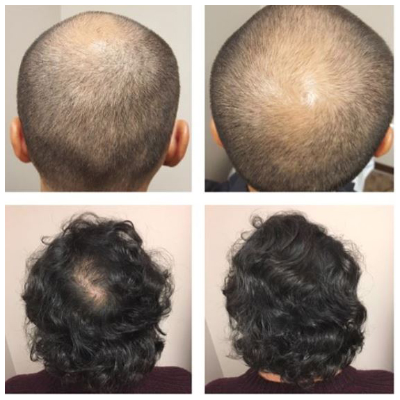 patient with thinning hair treated with manual FUE graft
